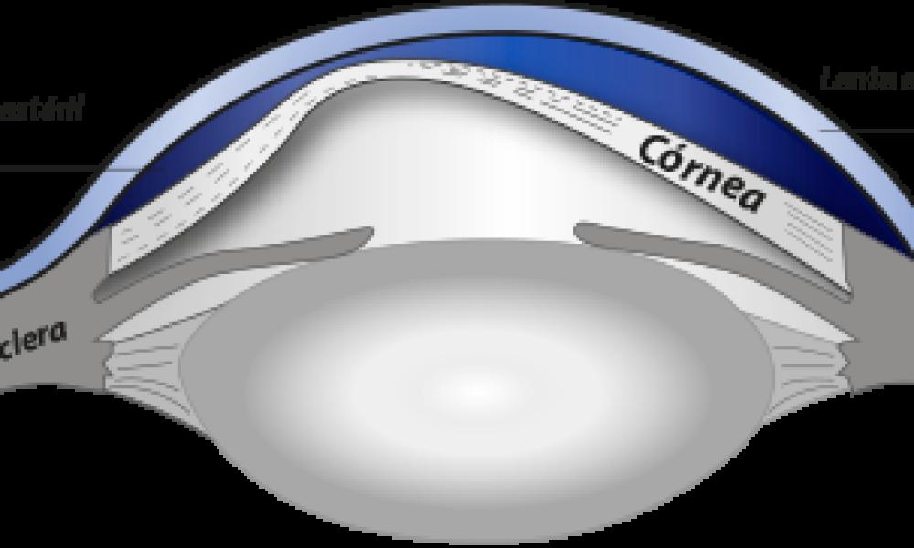 fc6e1e81a1 Nuevos avances en lentes de contacto | Victoria de Rojas
