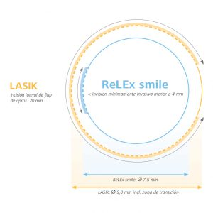 relex_smile_dibujo