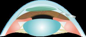 Queratoplastia endotelial